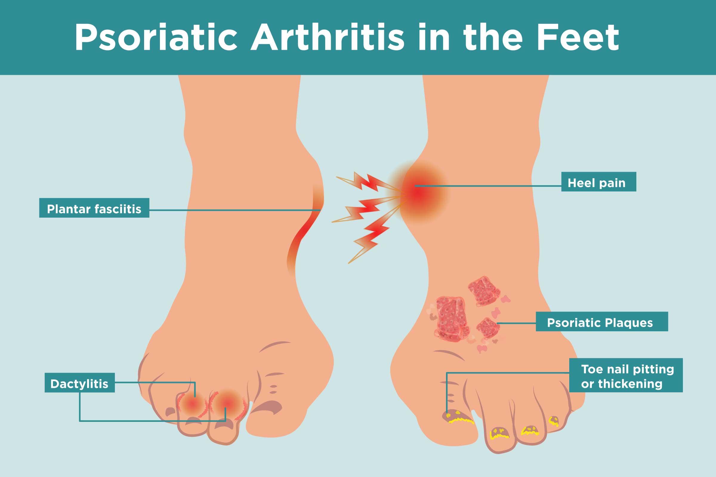 psoriasis on feet help gygynvnyek pikkelysömör ekcma