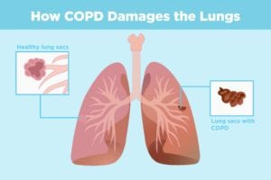 COPD and Arthritis