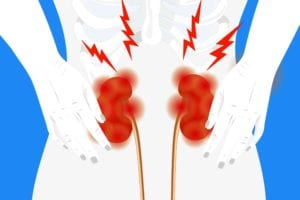 Gout and Kidney Disease
