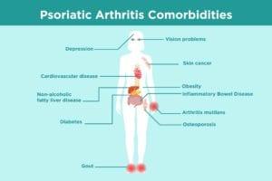 Psoriatic Arthritis Comorbidities