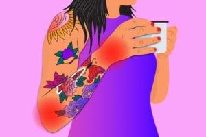 Tattoos and Arthritis