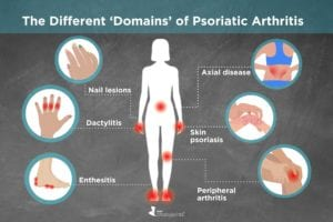 Types and Domains of Psoriatic Arthritis