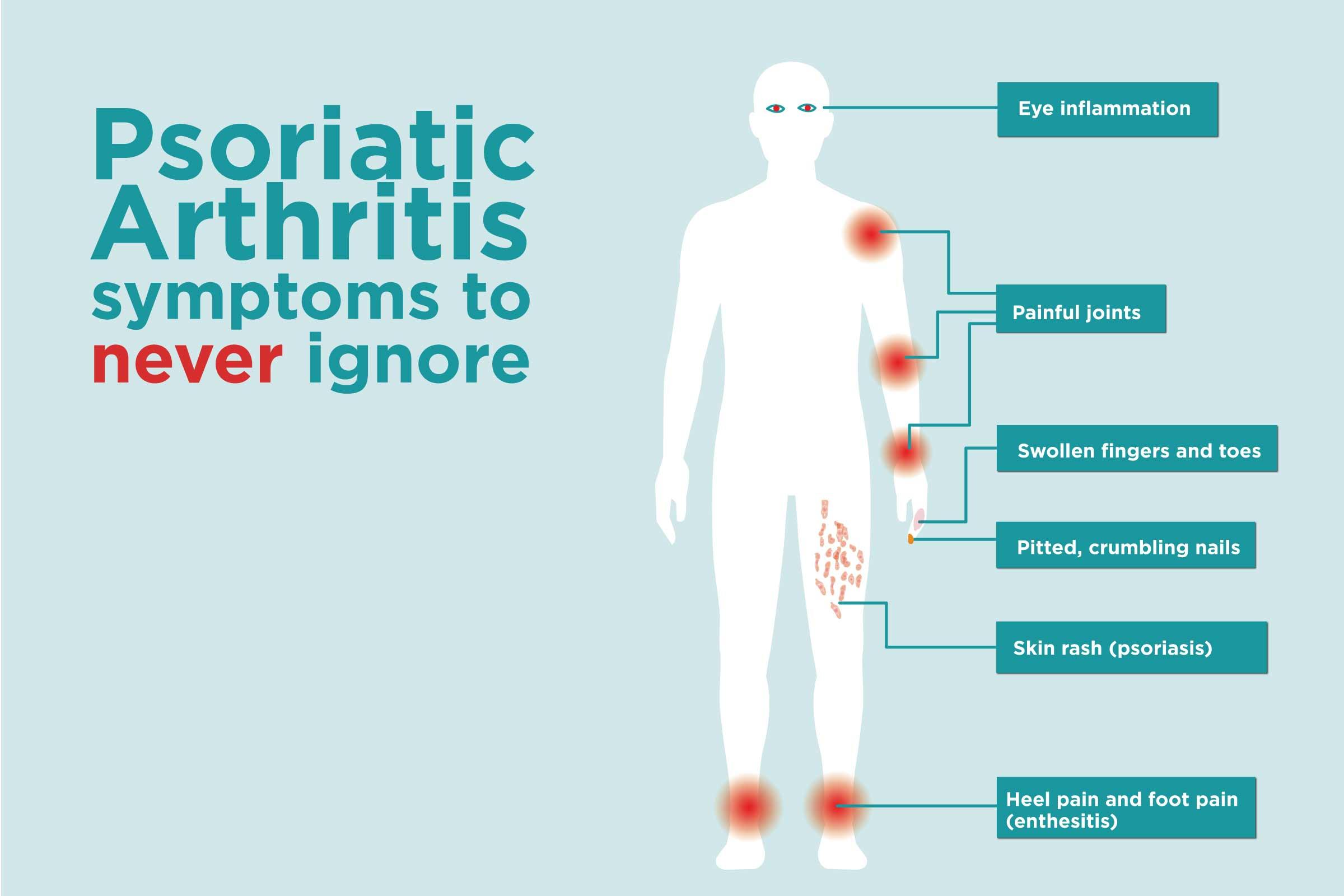 Asztma Psoriasis Arthritis | Sanidex Magyarországon