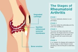 4 Stages of Rheumatoid Arthritis Progression