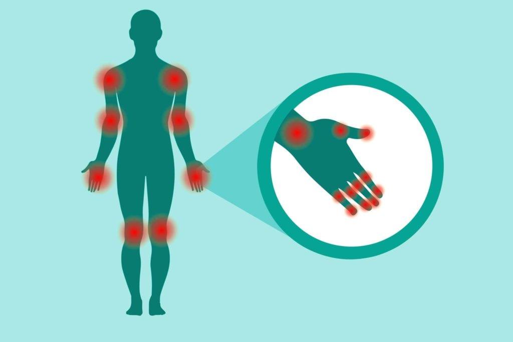 Tender Joint Count for Arthritis
