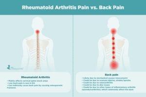 Rheumatoid Arthritis Pain vs. Back Pain