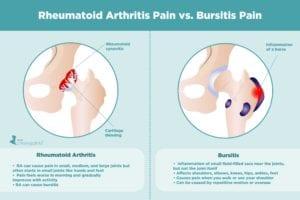 Rheumatoid Arthritis Pain vs. Bursitis Pain