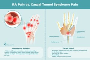 Rheumatoid Arthritis Pain vs. Carpal Tunnel Syndrome Pain