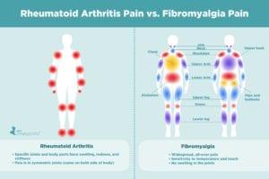 Rheumatoid Arthritis Pain vs. Fibromyalgia Pain