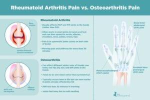 Osteoarthritis Pain vs. Rheumatoid Arthritis Pain