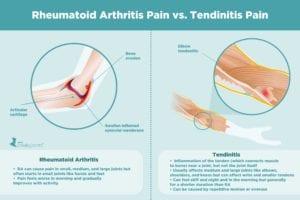 Rheumatoid Arthritis Pain vs. Tendinitis Pain