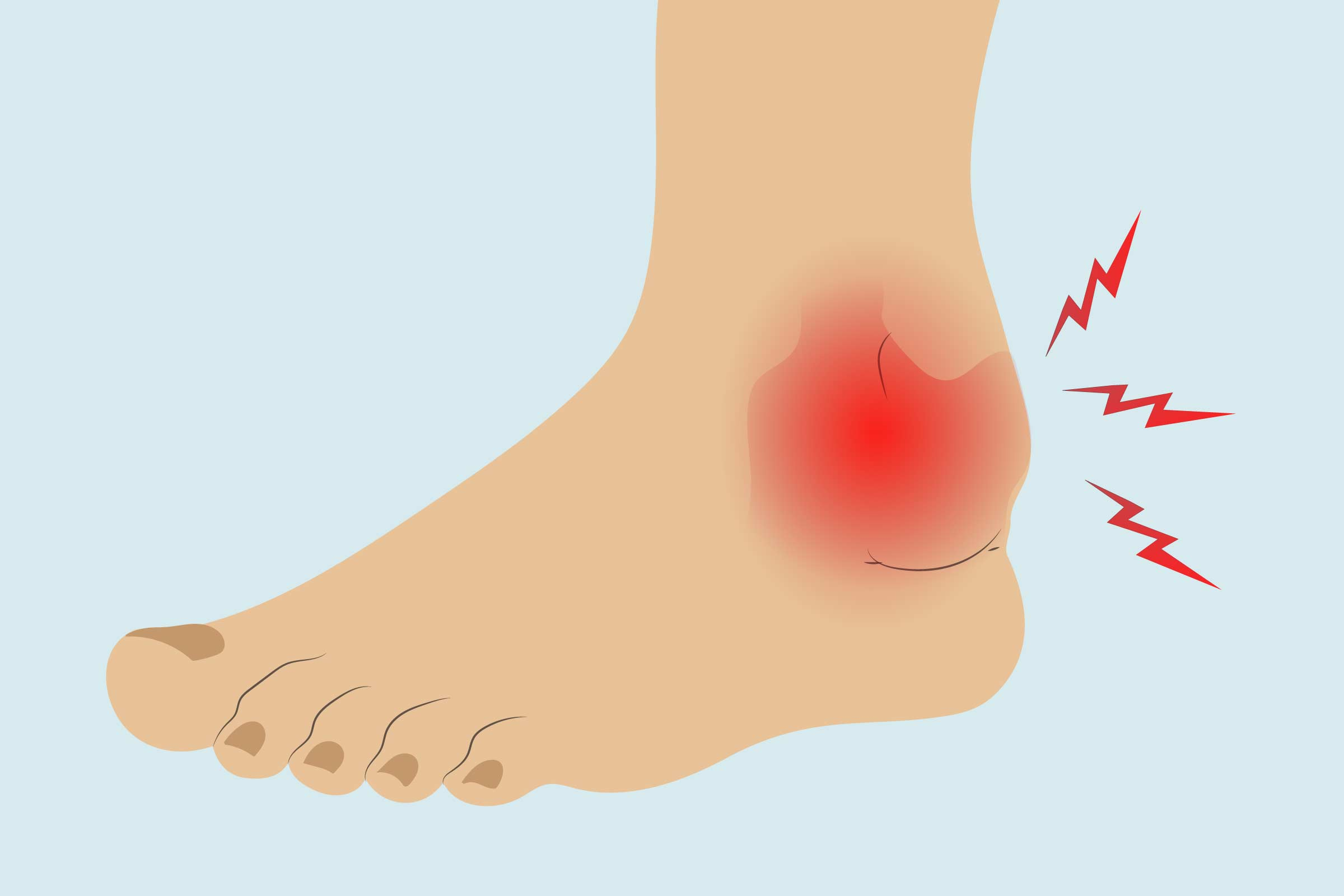 Arthritis in the Ankle Treatments, Exercises, and Home Remedies