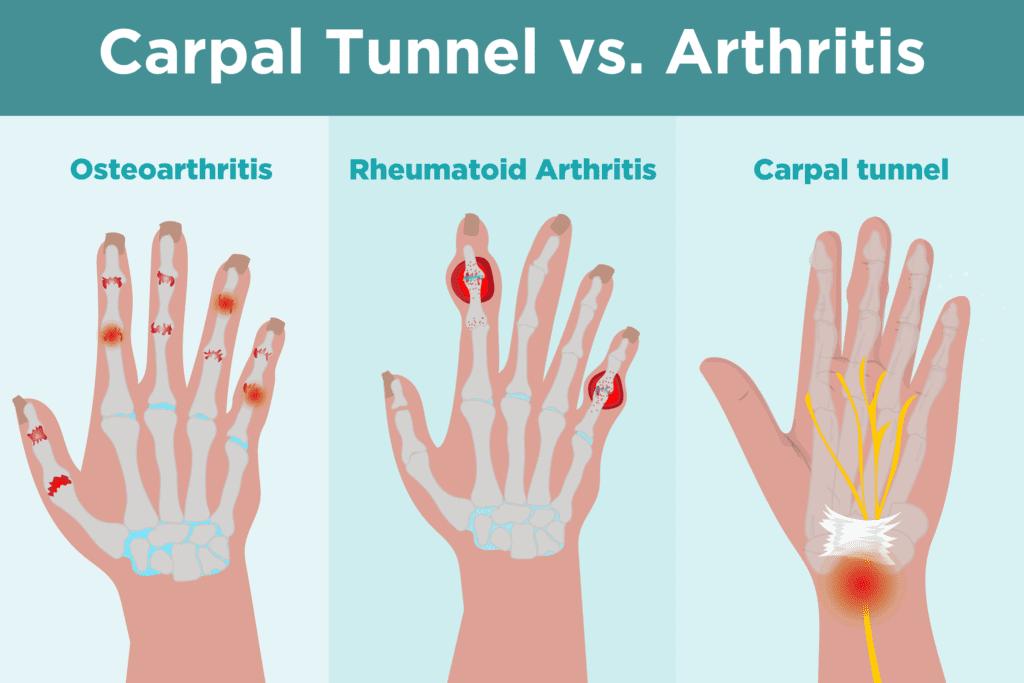 Carpal Tunnel vs. Arthritis