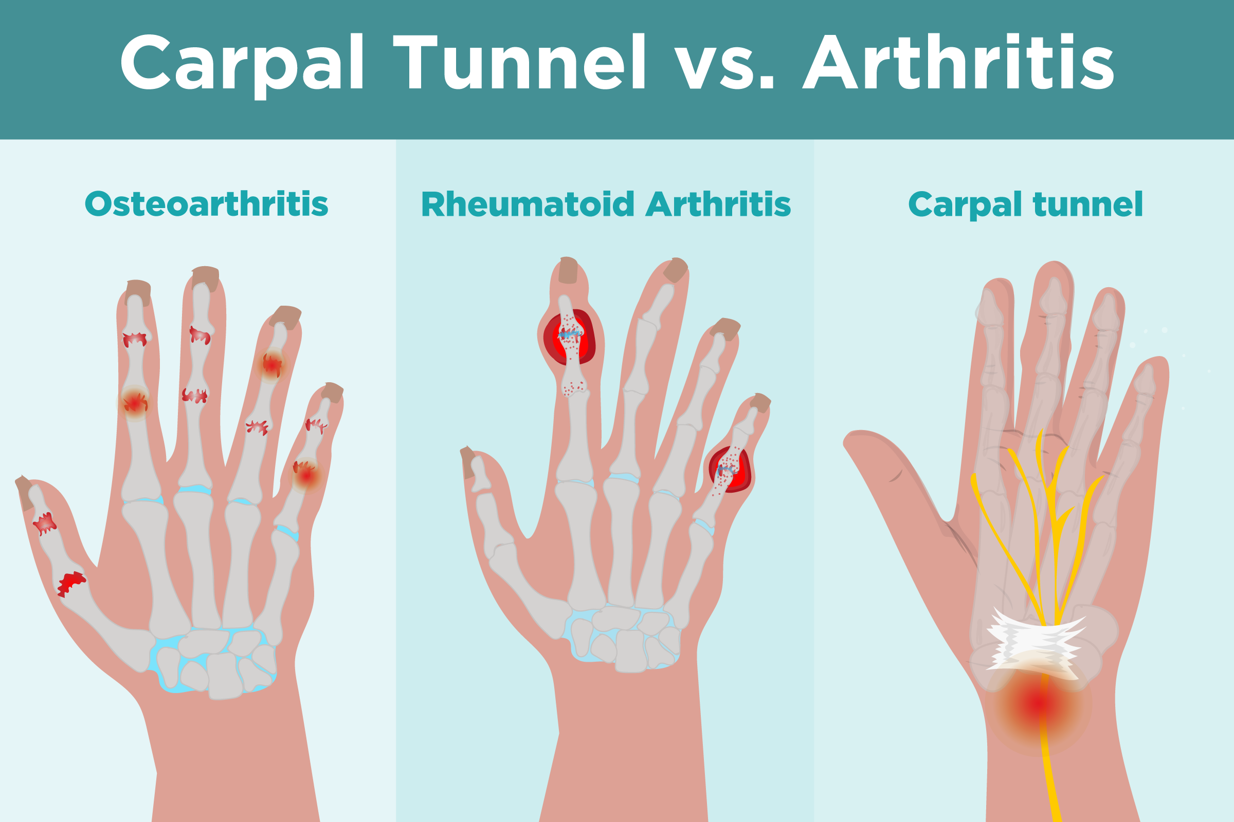 Carpal Tunnel Syndrome vs. Arthritis What\u0027s the Difference?