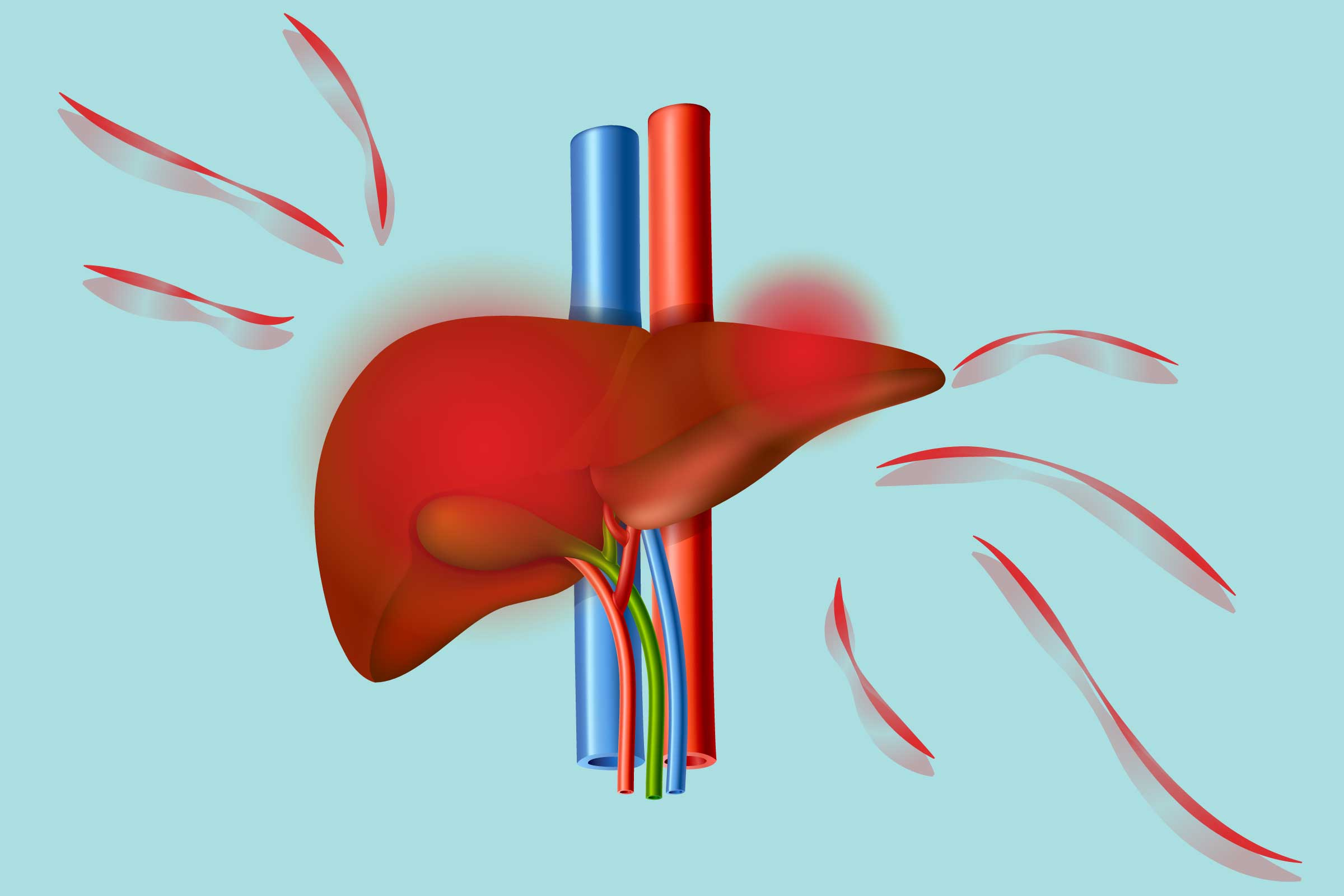 Arthritis And Nonalcoholic Fatty Liver Disease Understanding The Link