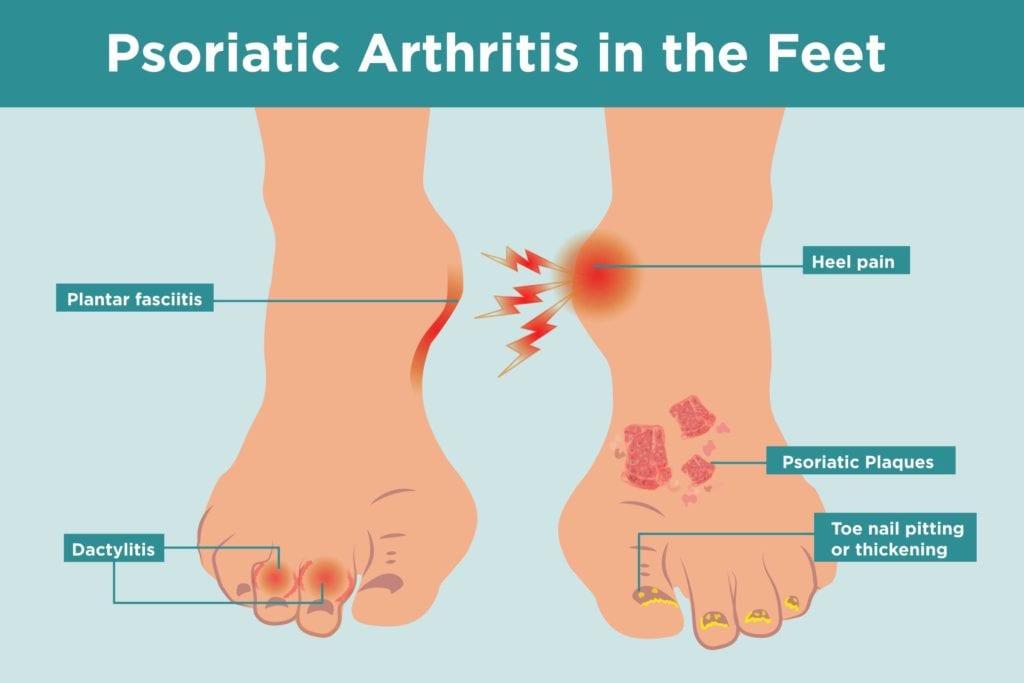 Psoriatic Arthritis in the Feet
