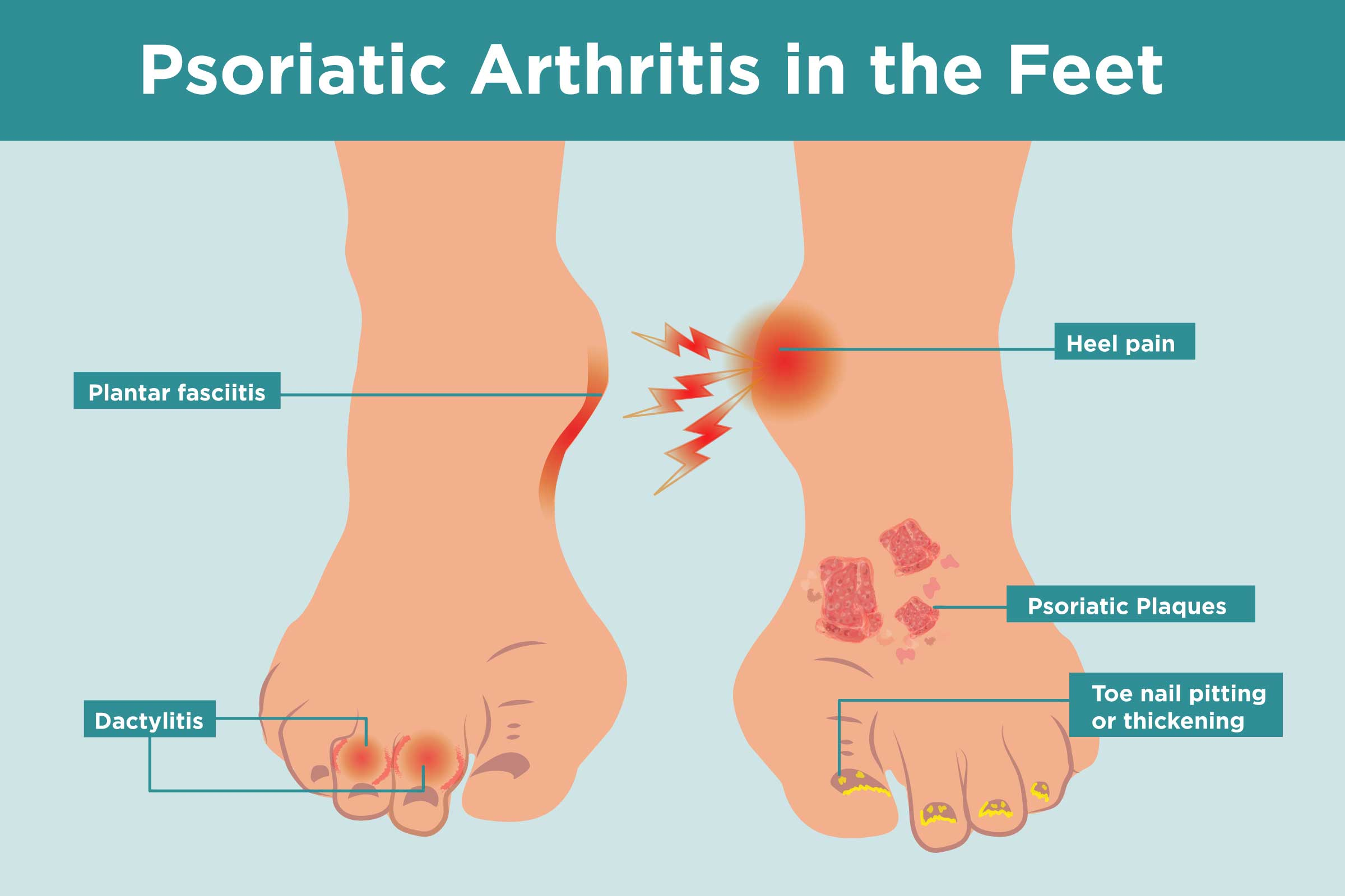 Psoriatic Arthritis In The Feet Symptoms Treatment Home Remedies
