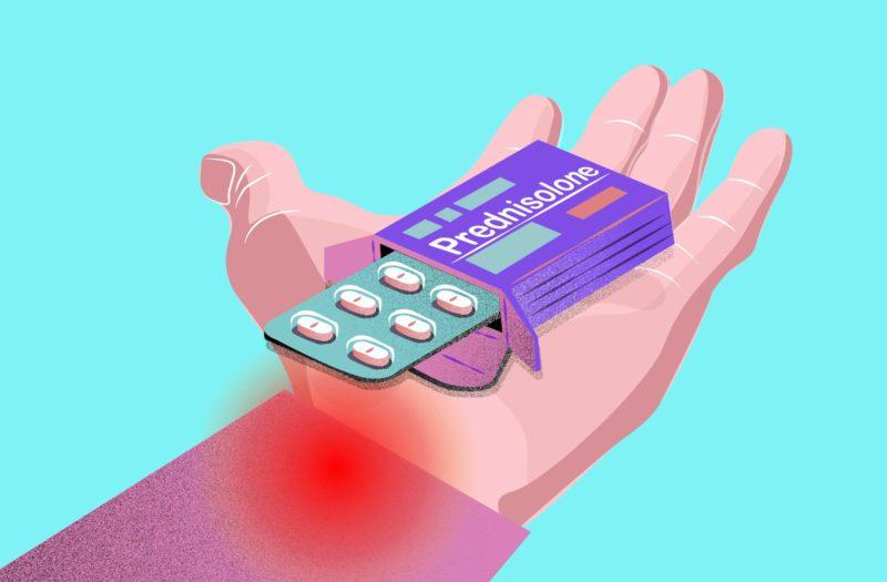 Prednisolone Helps Treat Hand OA