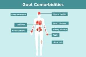 Gout Comorbidities Infographic