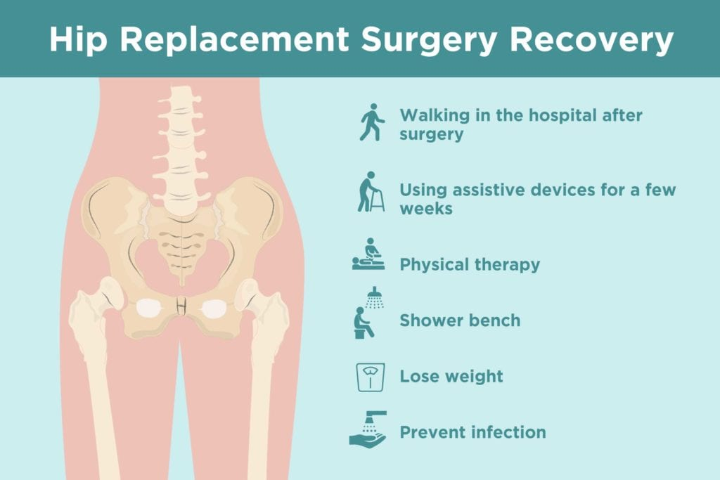 hipreplacement recovery