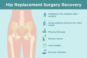 Hip Replacement Recovery: What To Expect