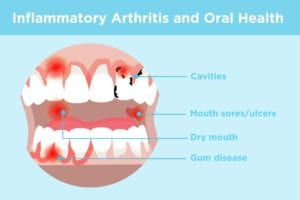 Inflammatory Arthritis and Oral Health
