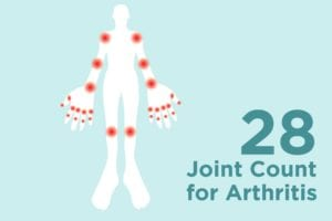 28 Joint Count Test for Arthritis