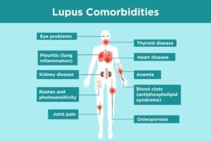 Lupus Comorbidities Infographic