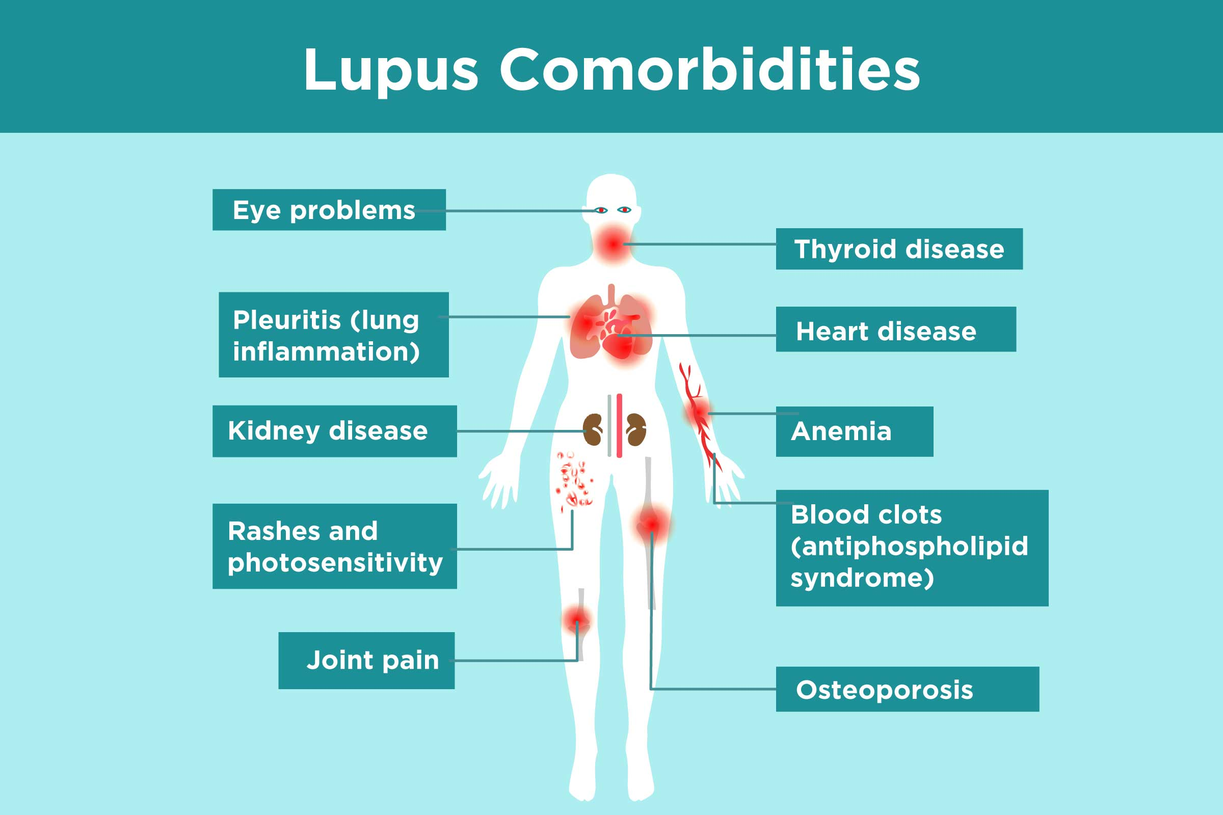 Lupus Complications What Lupus Patients Need To Know