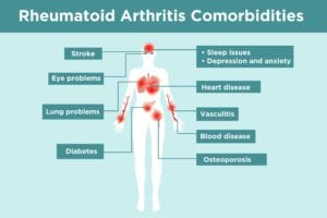 Rheumatoid Arthritis Comorbidities Infographic