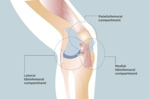 Tricompartmental Knee Osteoarthritis