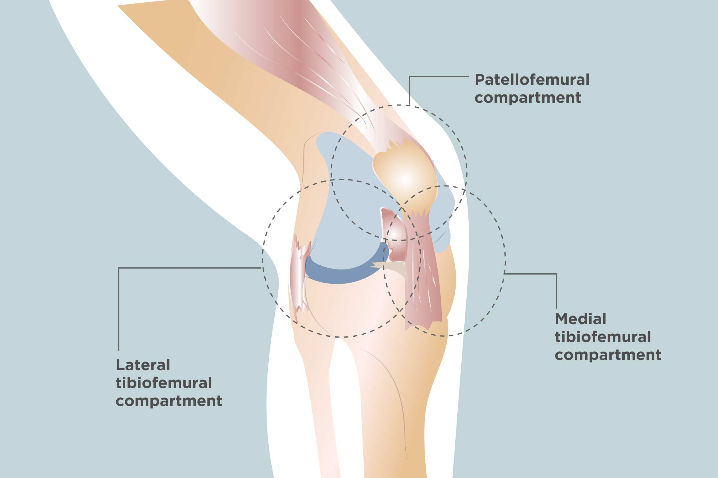 knee injuries, knee schematic, knee articular cartilage, medial collateral ligament, knee brace patellar tendon strap, knee cap popped out of place, knee bones, knee arthritis symptoms, medial meniscus, knee and leg tendons, sacroiliac joint, knee pain, posterior cruciate ligament, hinge joint, knee patella, knee drawing, knee exercises, anterior cruciate ligament injury, knee high heels, knee biology, knee osteoarthritis, knee flexion and extension, synovial joint, knee bursa, knee model, knee movements, knee arthroscopy, knee structure, knee outline, anterior cruciate ligament, on knee diagram