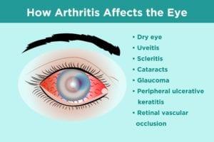 How Arthritis Affects the Eye