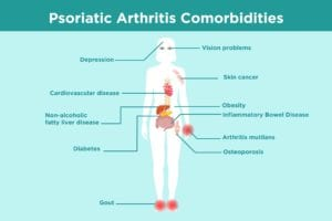 Psoriatic Arthritis Comorbidities