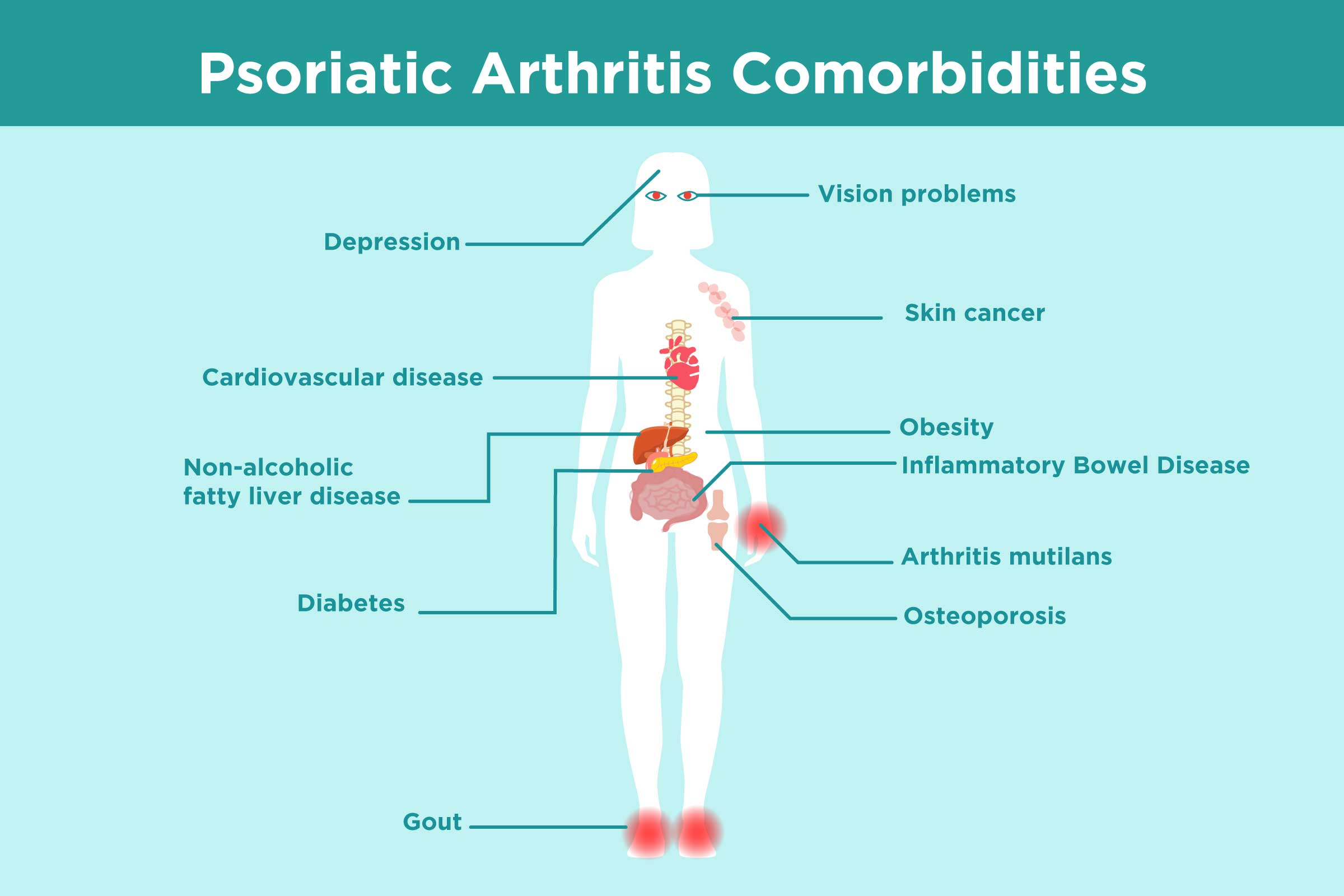 possible complications for psoriasis
