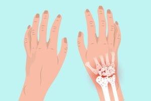 Arthritis in Wrist