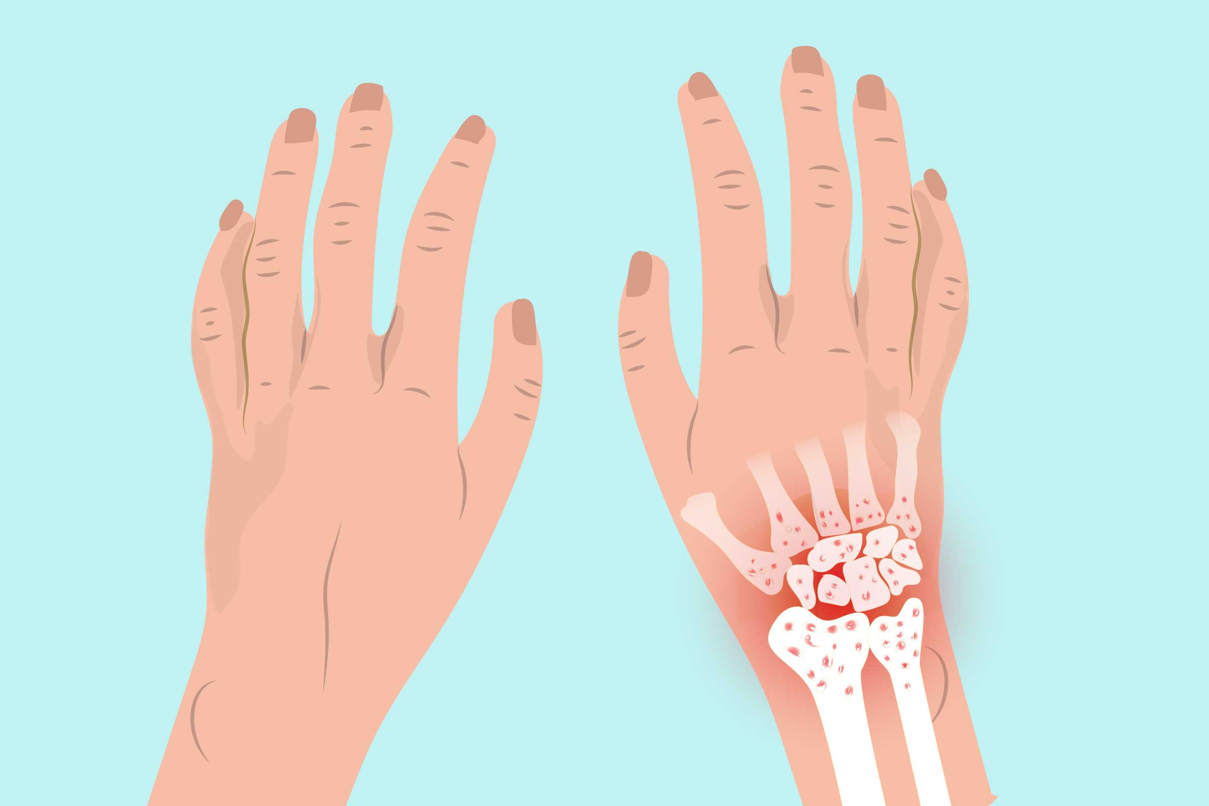 Arthritis in the Wrist Symptoms, Types of Wrist Arthritis