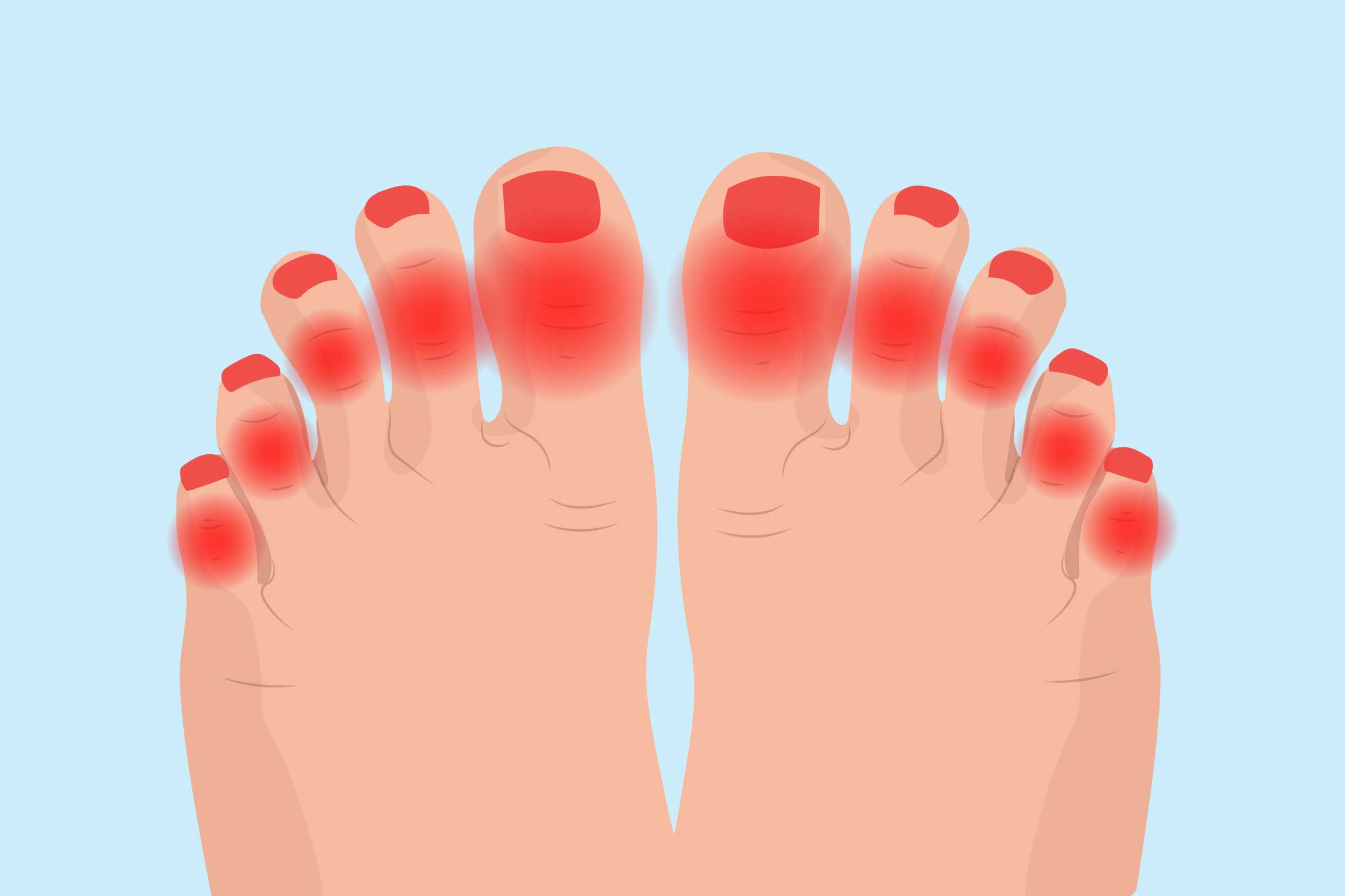 Arthritis in Toes , Symptoms, Causes, Diagnosis, and Treatment
