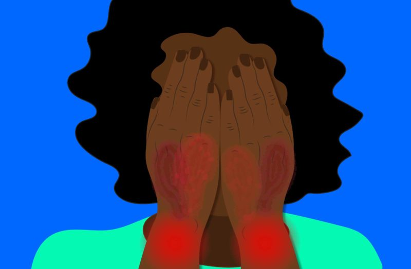 An illustration of a woman of color covering her face with her hands. Her hands are red and scabby due to psoriatic arthritis.