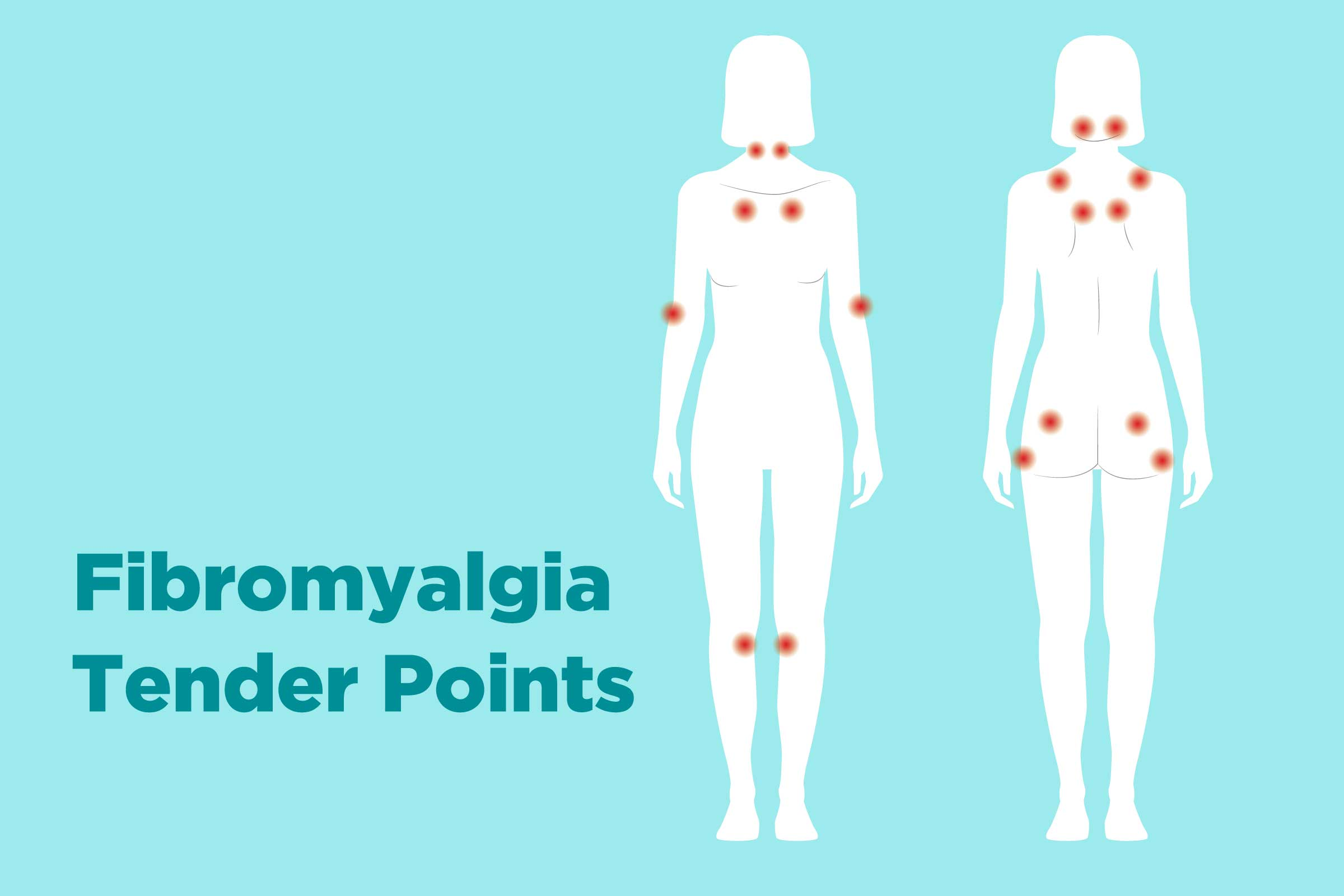 Fibromyalgia Tender Points: What and Where Are They?