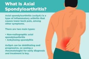 Axial Spondyloarthritis