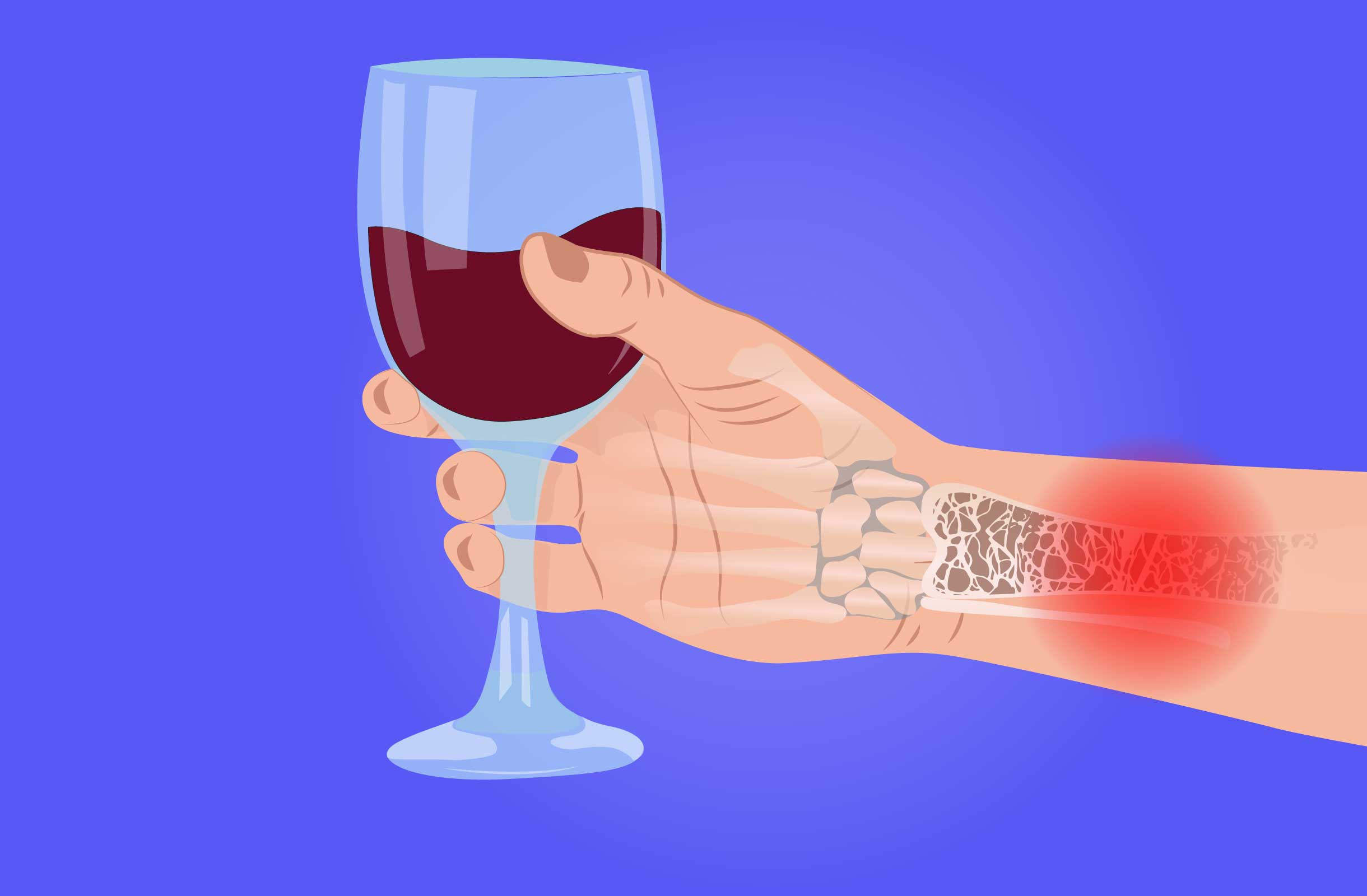 can alcohol cause arthritis