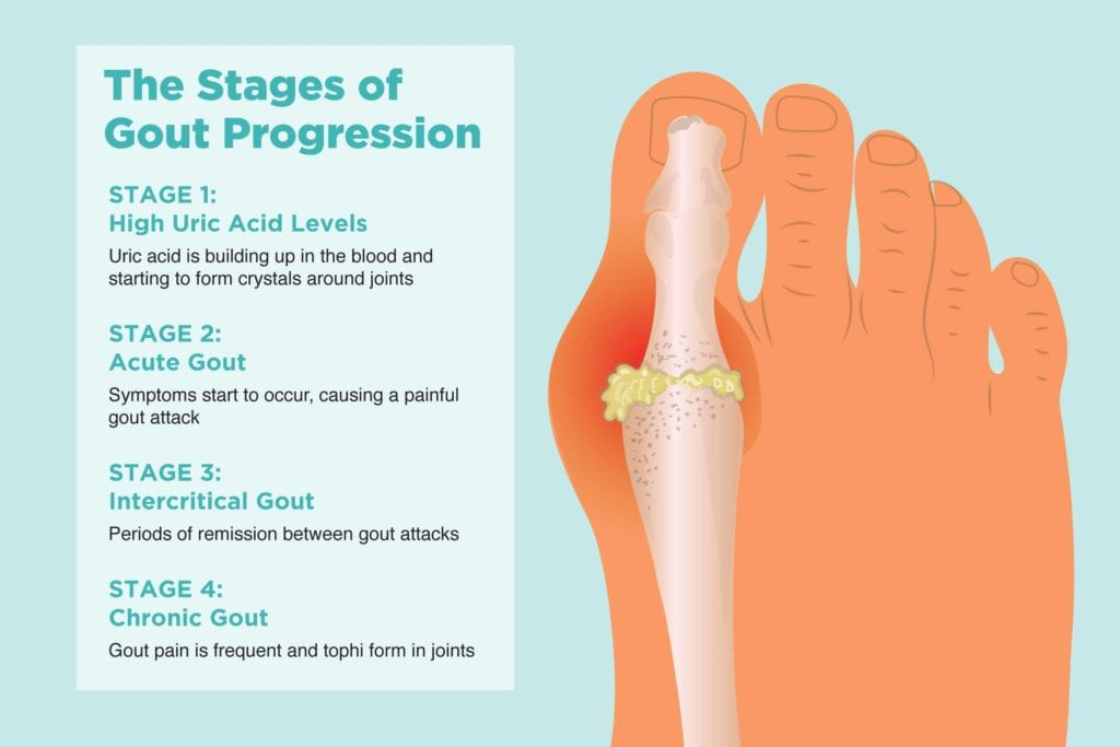 The 4 Stages of Gout and Preventing Disease Progression