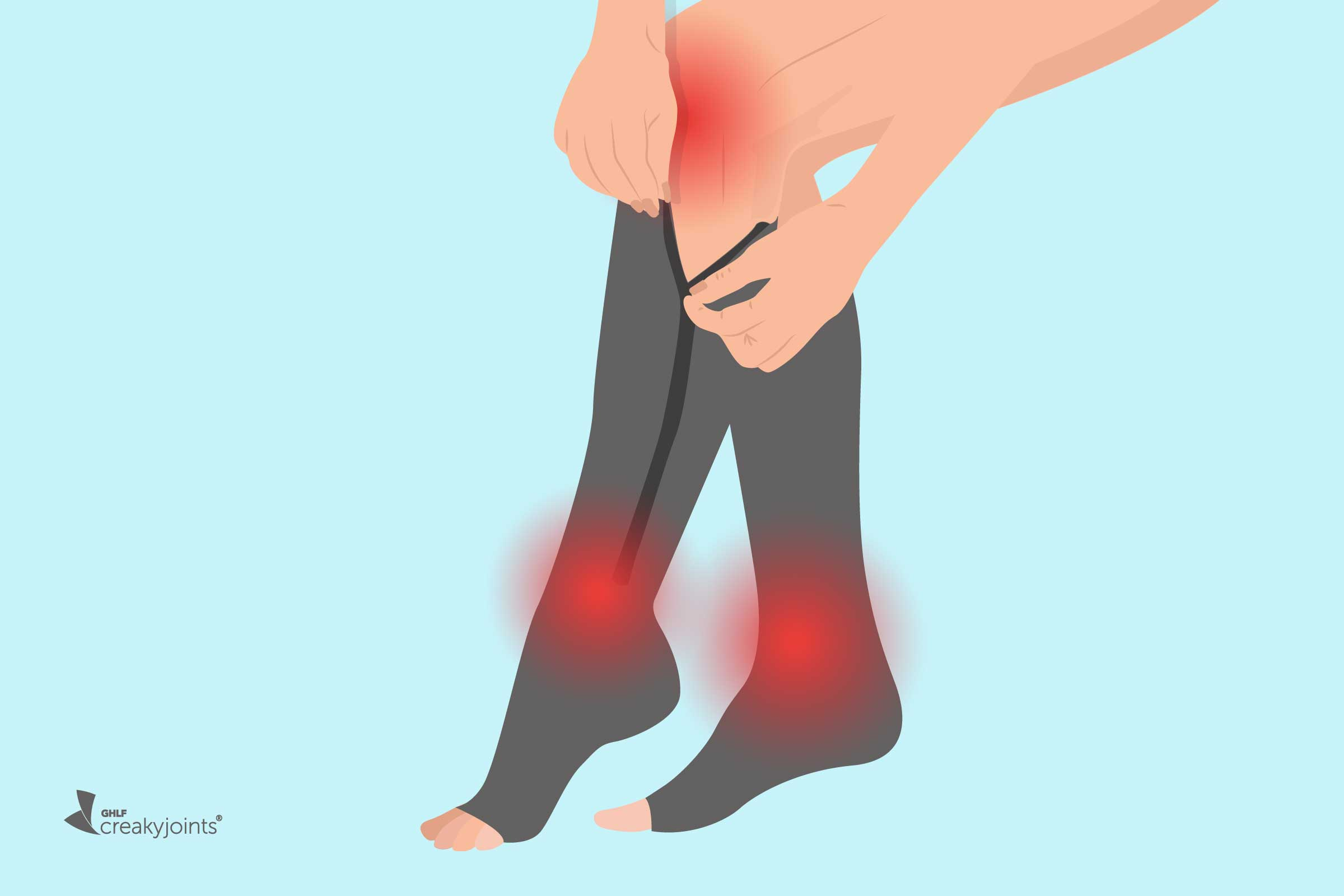 Compression Socks for Arthritis: How They Work, Brands to Try, More