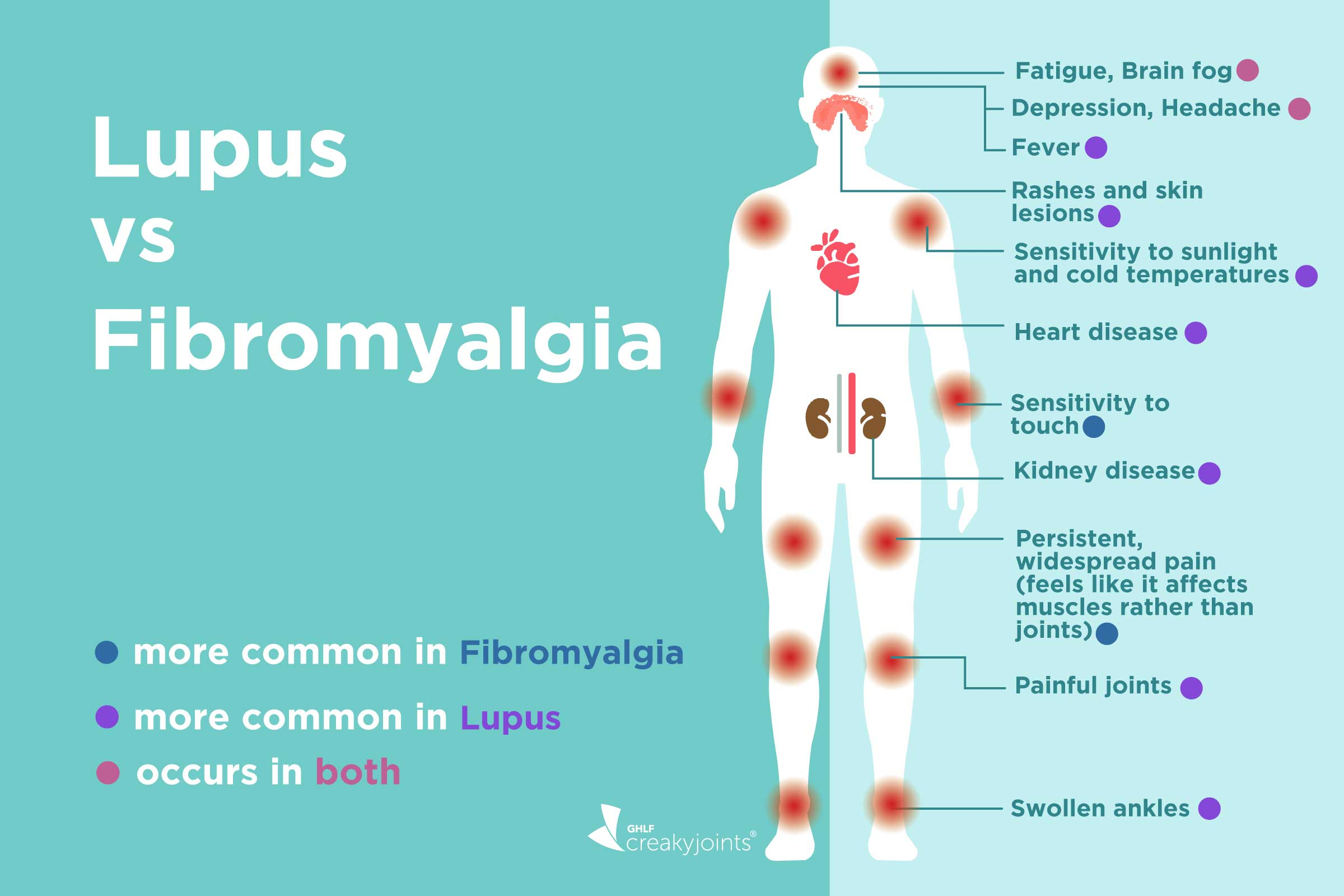 Fibromyalgia Vs Lupus What S The Difference