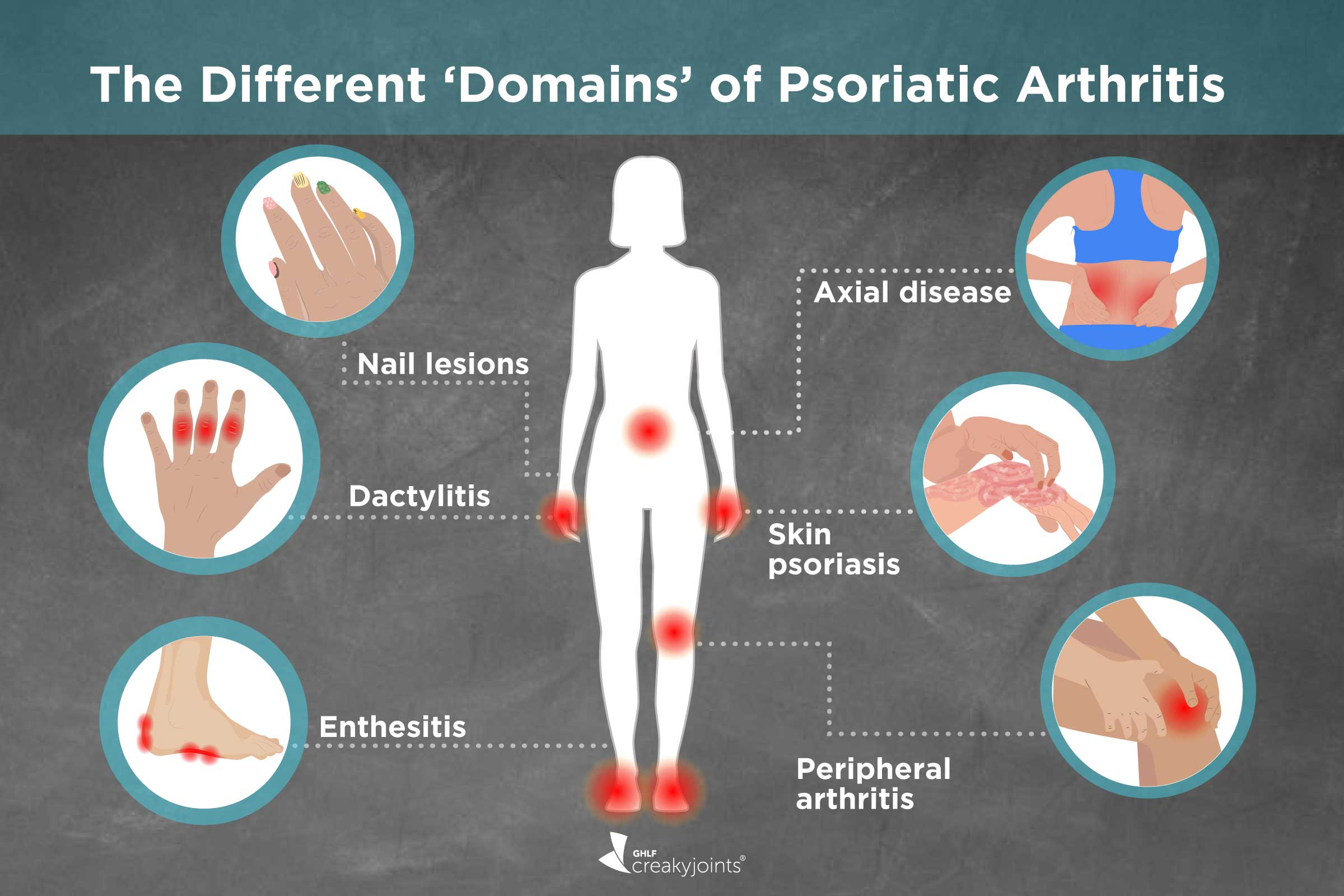 Different Types Of Psoriatic Arthritis Symptoms Treatments Outcomes