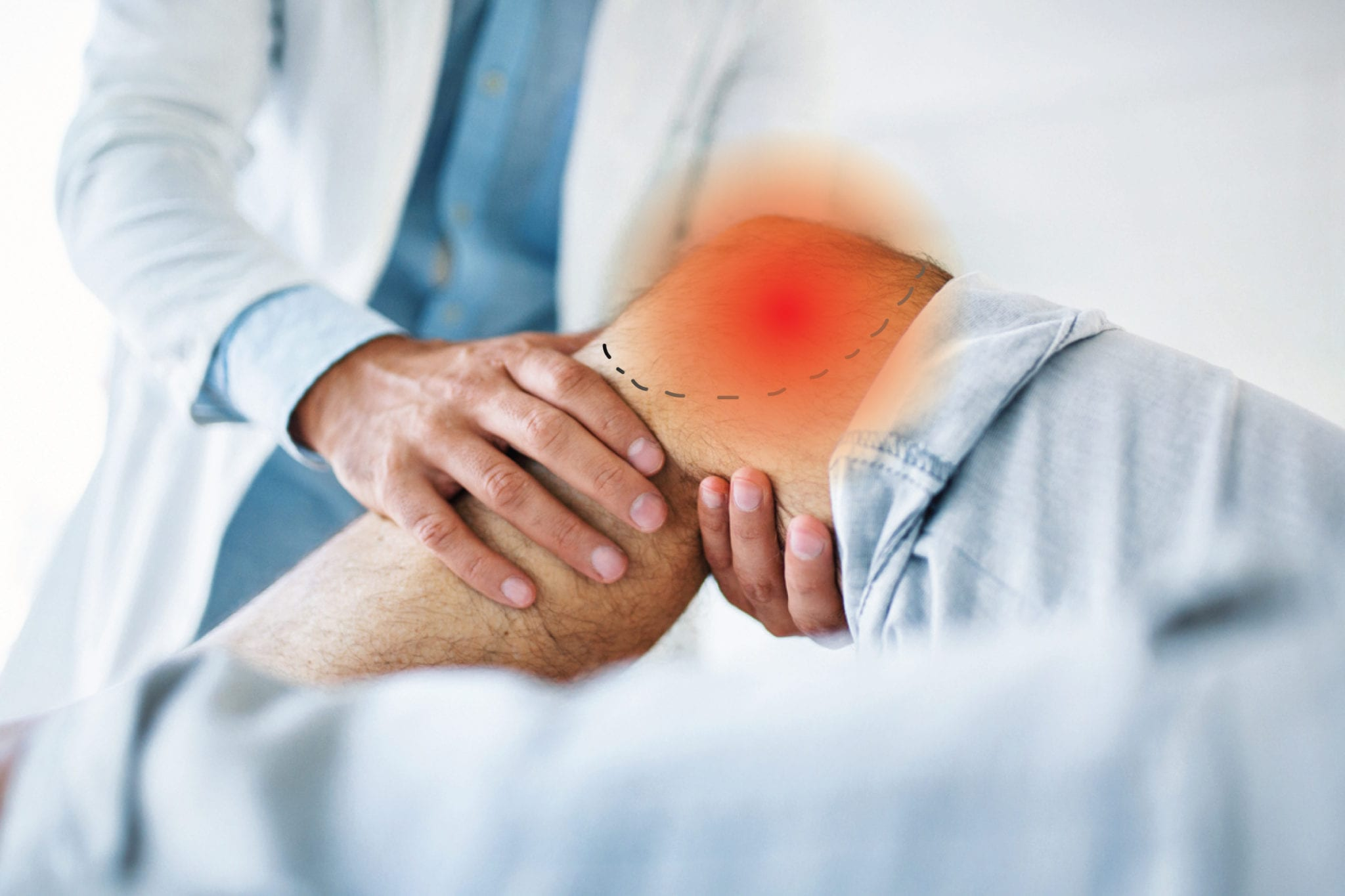 New Meniscus Knee Repair Surgery Could Slow Arthritis Onset