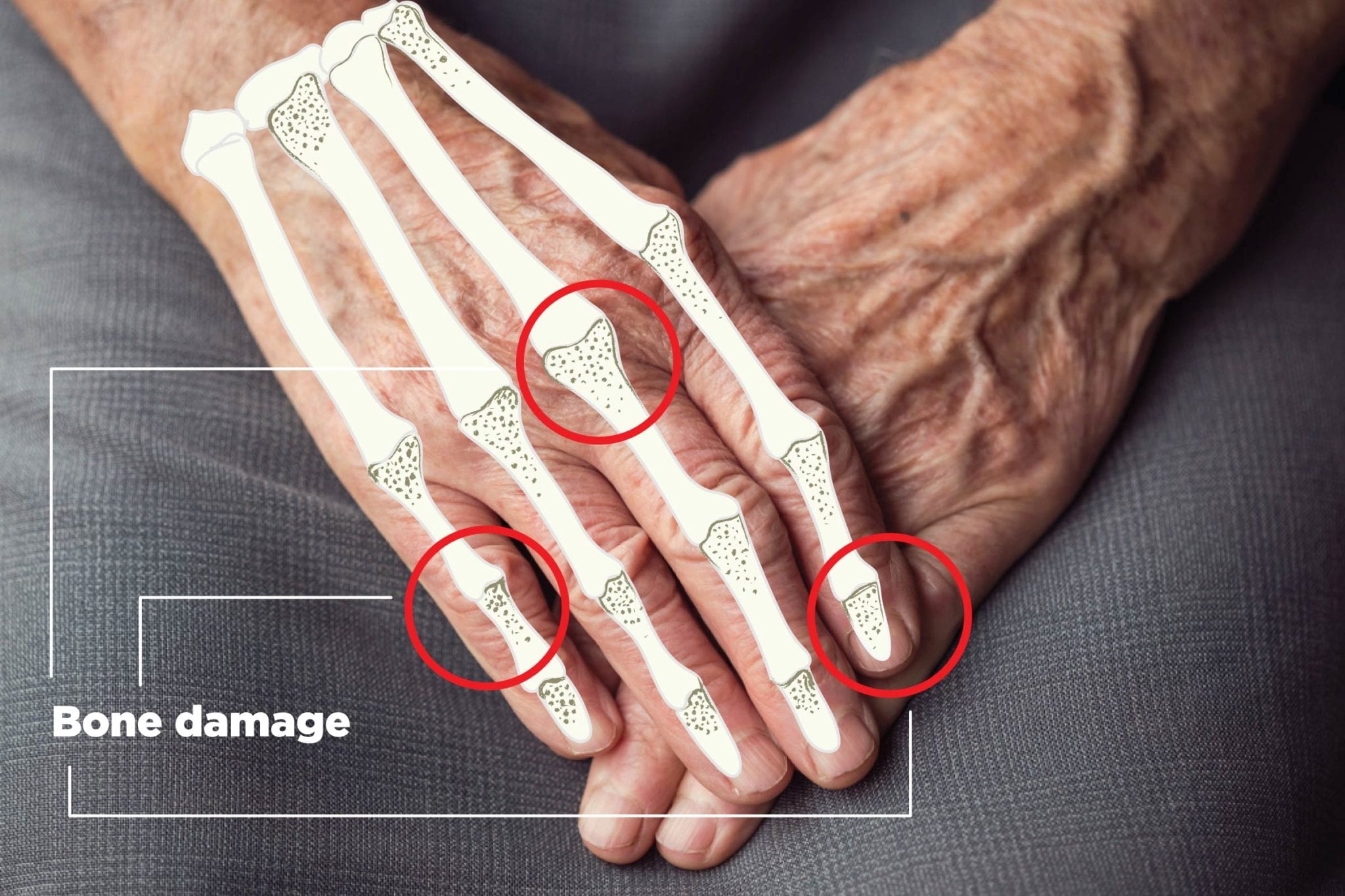 New Study Psoriatic Arthritis Can Cause Different Kinds Of Bone Damage And Surprisingly Psoriasis Might Too Creakyjoints