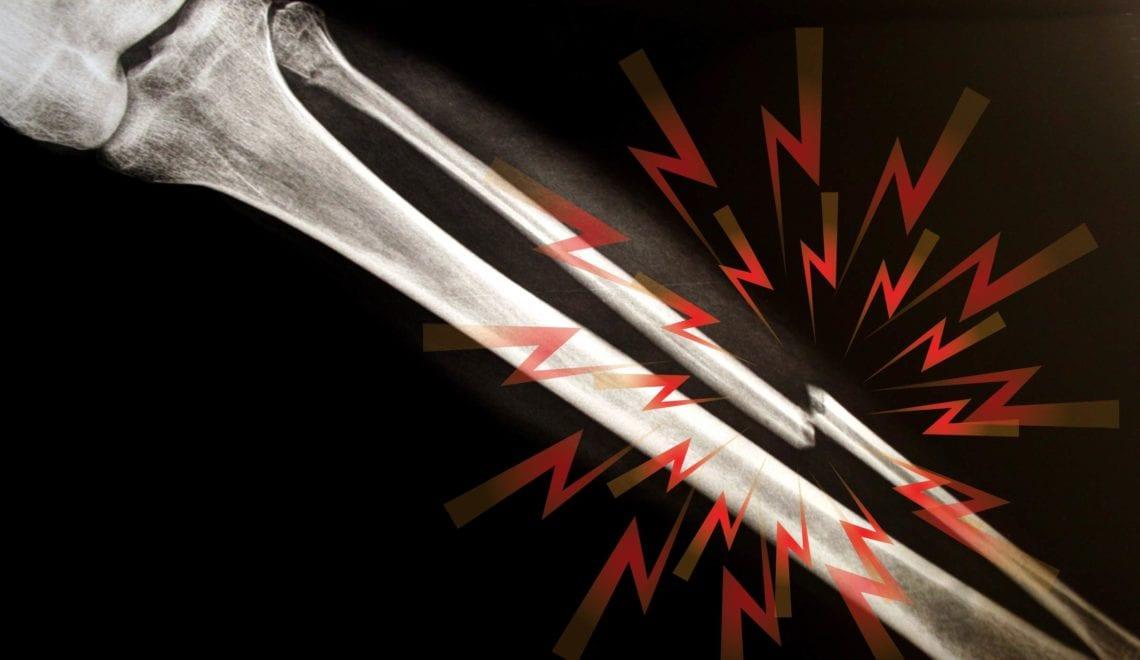 Rheumatoid Arthritis Bone Fractures