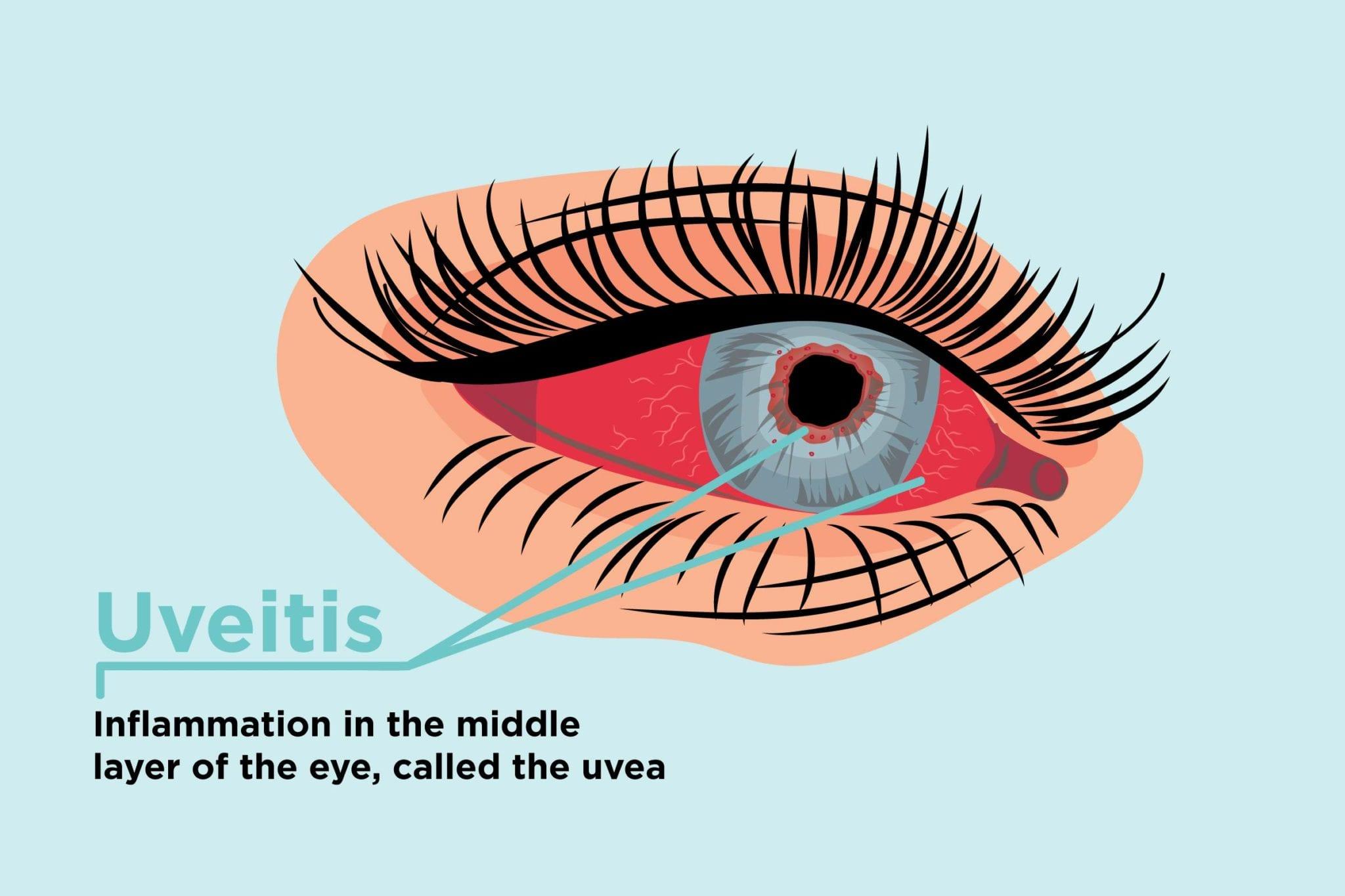 can arthritis affect the eyes